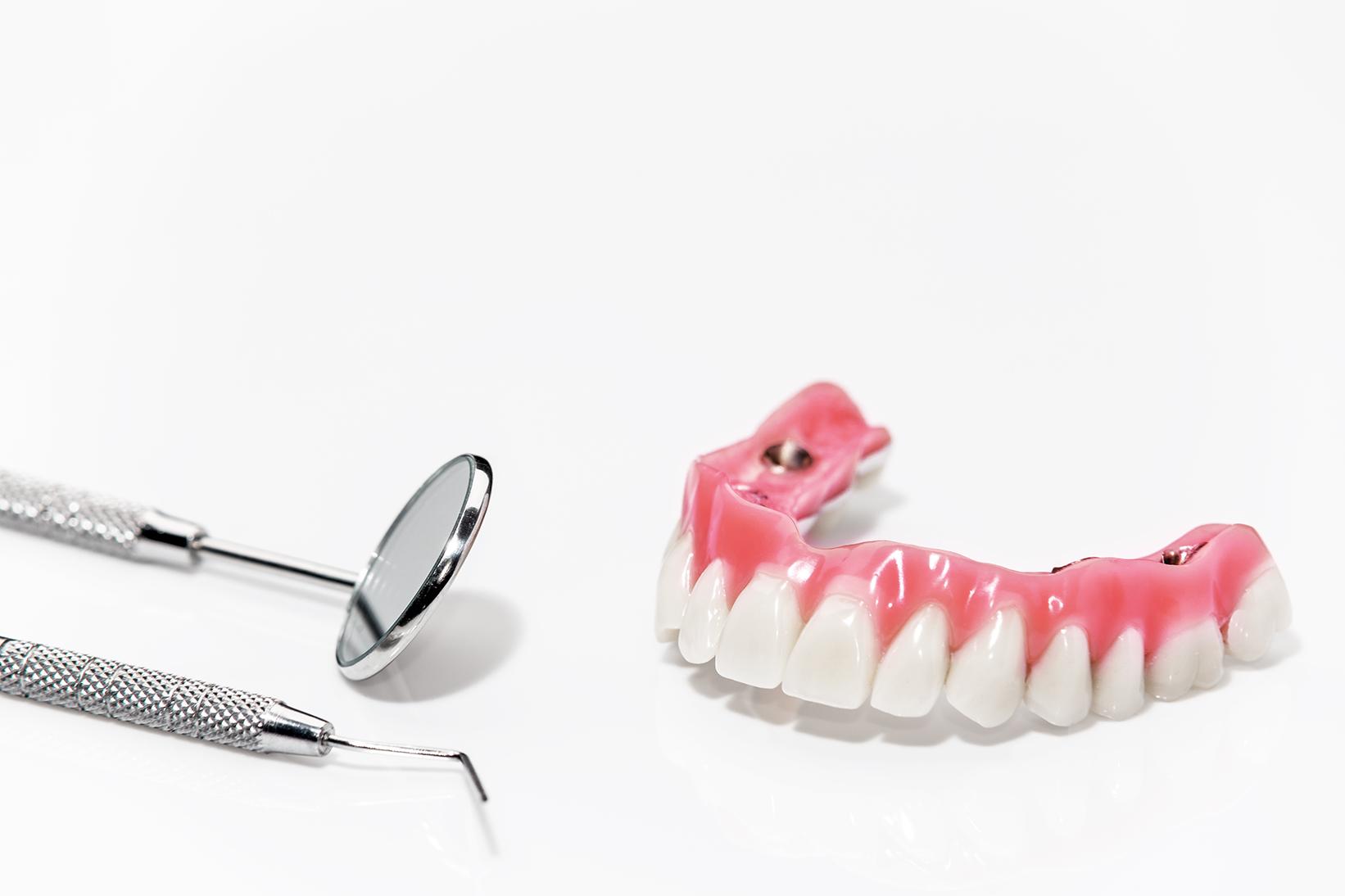 Implantat getragener Zahnersatz